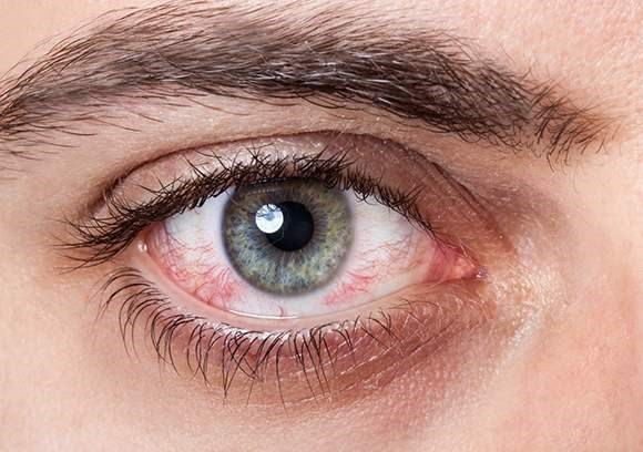 Close up image of conjunctivitis in a male's eye