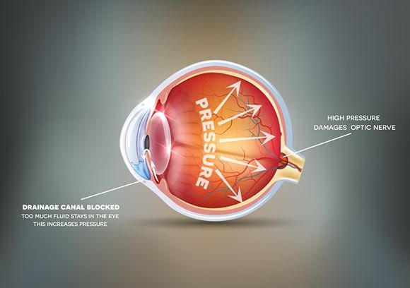 Eye diseases animation