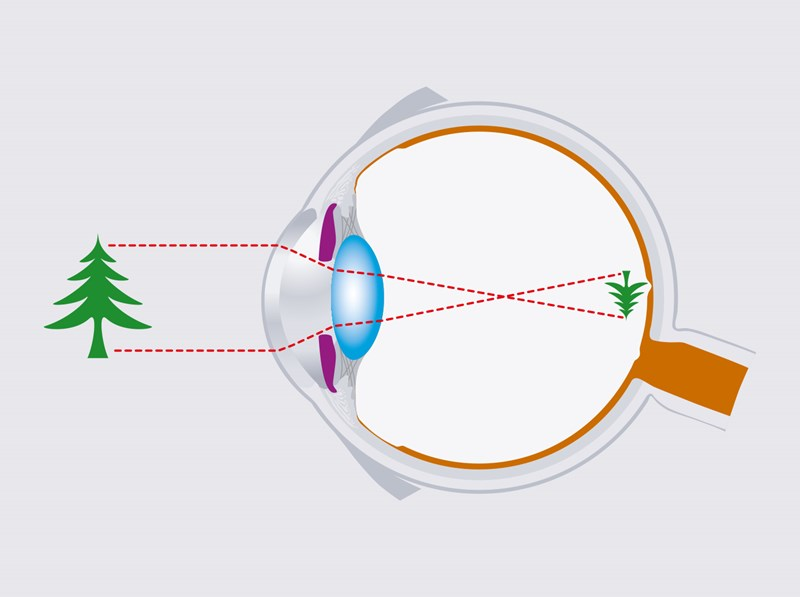 Hoya Vision how you see eye animation with tree