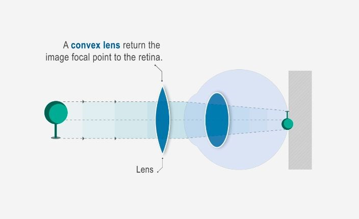 Hoya Vision correct nearsightedness hyperopia diagram