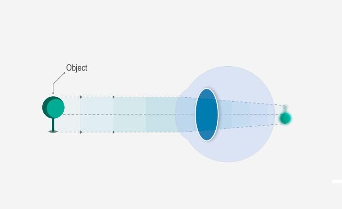 Különbség a rövidlátás (rövidlátás) és a hiperopia (hosszúlátás) között