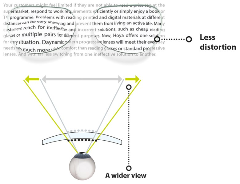 Diagram showing an example of eye distortion